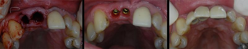 gm_dental_implant_occlusal