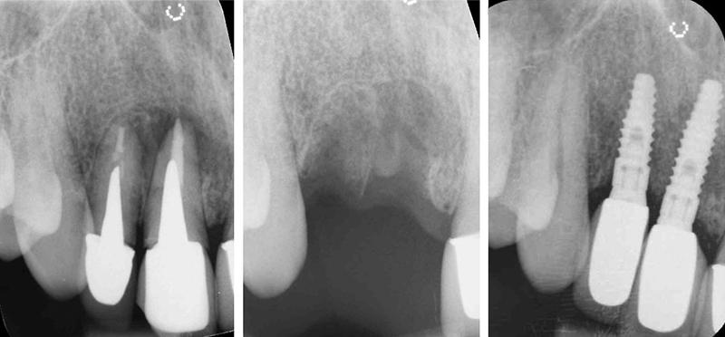 gm_dental_implant_x-ray
