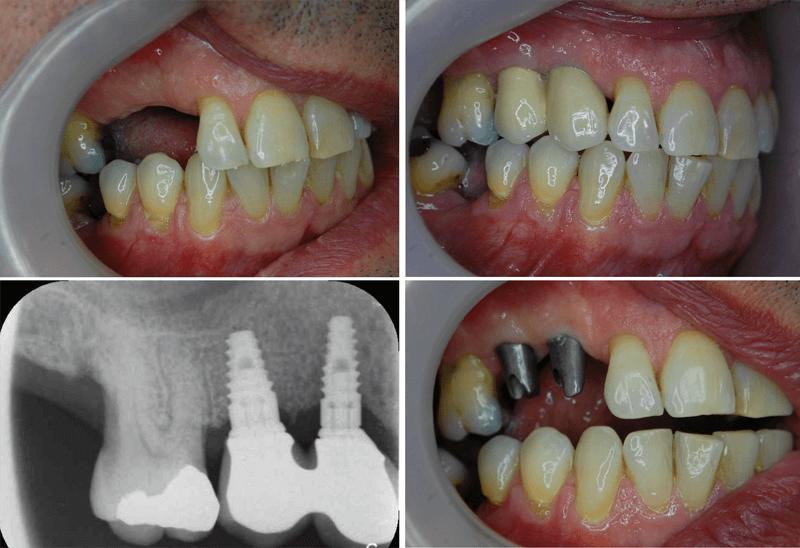 implant-bridge-radiograph