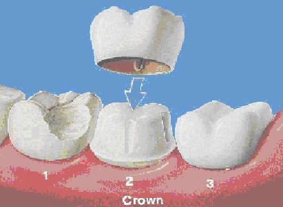 crown-prep