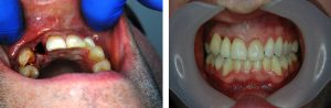 lateral incisor implant