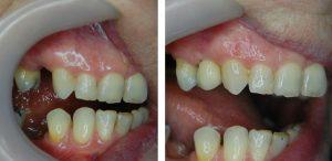 Premolar Implant